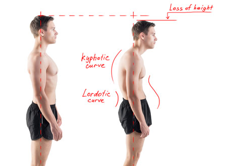 Posture diagram showing good and bad posture.