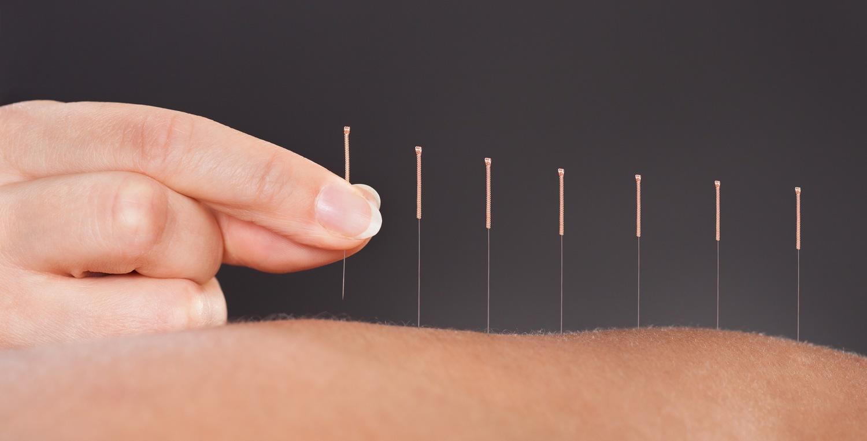 Acupuncture & Reflexology Clients